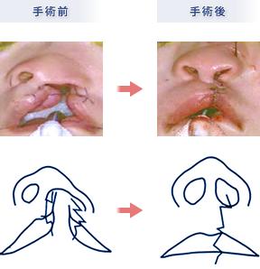 裂 口唇 口蓋